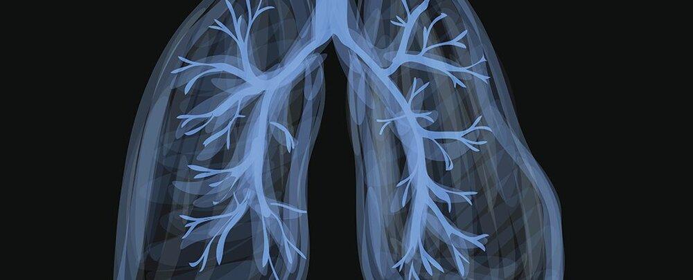 آیا چربی بر ریه هم اثر می گذارد؟